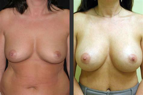 Breast augmentation in virginia beach jpg 750x500