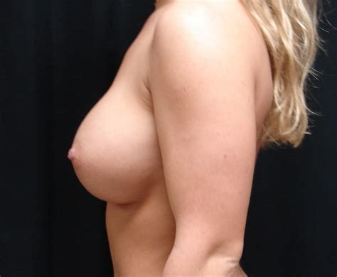 Breast augmentation before and after photos virginia beach jpg 661x544